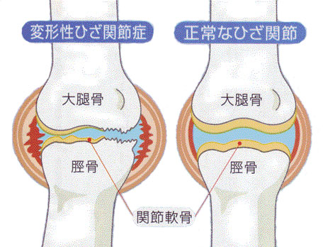 膝痛の原因・変形性膝関節症、膝サポーターの活用も。