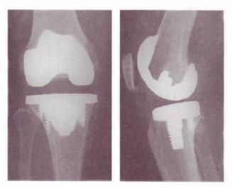 変形性膝関節症・人工関節