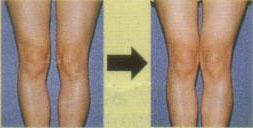 膝の痛み・関節痛の原因と治し方