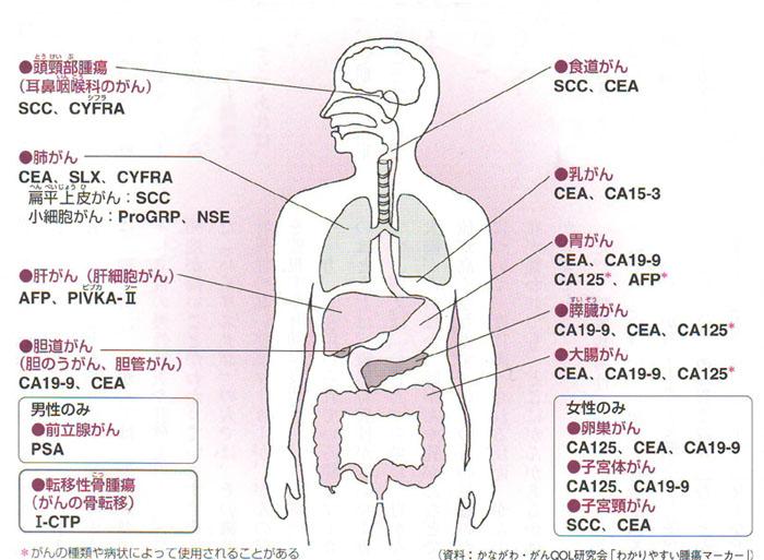 マーカー 胆嚢 癌 腫瘍