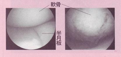 膝痛の内視鏡治療